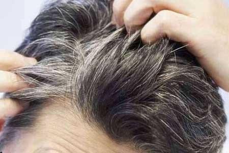 نشانه هایی که موها در خصوص سلامتی به ما متذکر می شوند